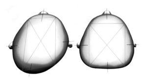 Tomado y modificado de Kreutz M, et al. Journal of Cranio-Maxillo-Facial Surgery 2018;46: 28e34